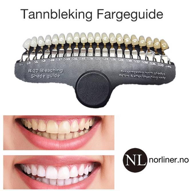 Bilde av TF-Tannbleking Fargeguide